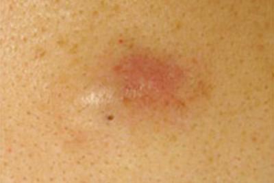 粉瘤症例写真